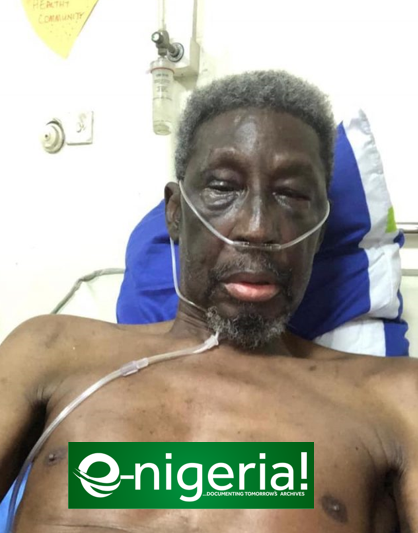 Again, actor Sadiq Daba back in hospital | e-nigeriang.com-e-nigeria!